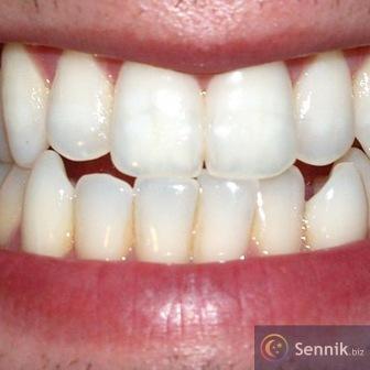 Ząb, zęby