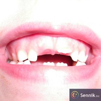 Mleczaki, zęby mleczne